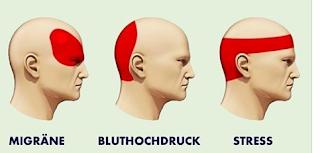 fejfájás beazonosító