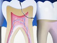 a fogak öngyógyító képessége már nem vitatott